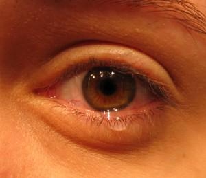 Eye W-Tear